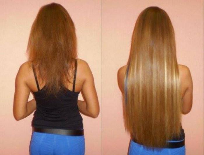 Past.am   Հիանալի դիմակ` մազերի աճն ...