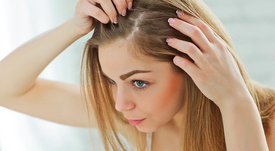 Выпадение волос: 5 причин, окоторых вы недогадывались