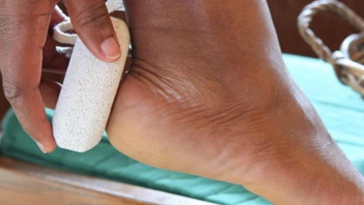 Исключительно эффективная домашняя процедура от треснувших пяток