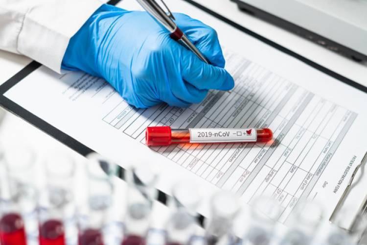 Կորոնավիրուսի հաստատված դեպքերի թիվն աճել է 131-ով